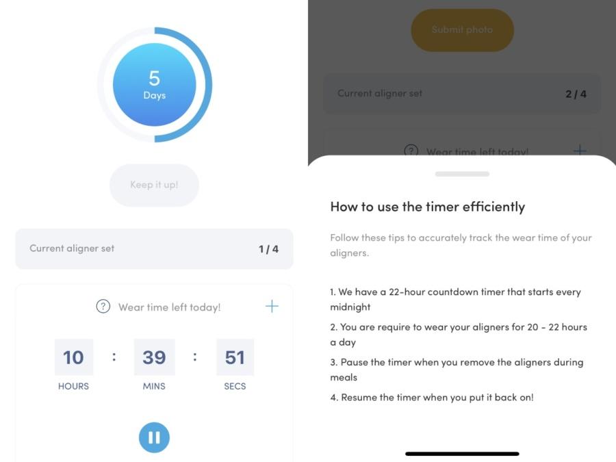 Zenyum App Timer Review Singapore