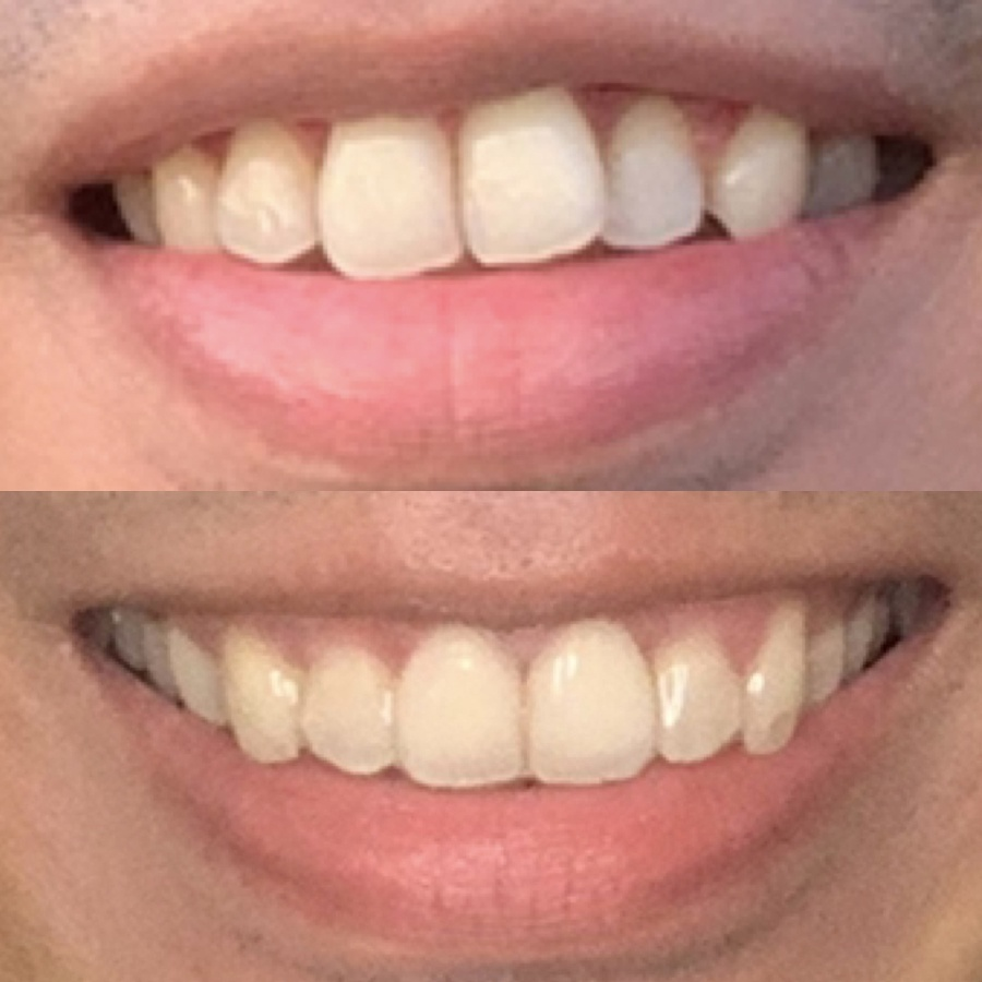 Zenyum Singapore Review | Before and After Treatment
